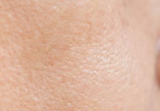 Larocheposay Artikelsida Tendens till akne Allt om akne och fet hy