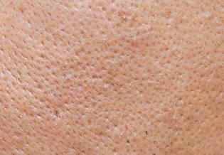 Larocheposay Artikelsida Tendens till akne Hur du tacklar pormaskar