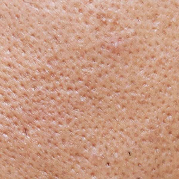 Artikel om akne – huvudbild